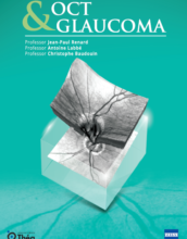 1st cover_ OCT & Glaucoma book