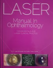 Laser in Opthalomology