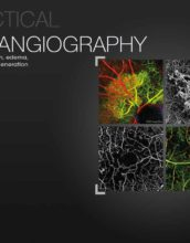 OCT Angiography2 (2)