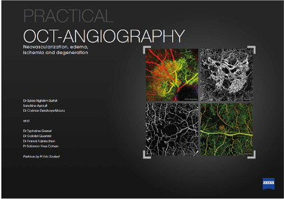 TheaPharma-Practical-OCT-angiography